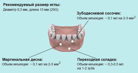 Plasmolifting стоматология