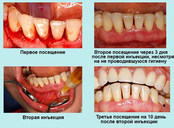 Plasmolifting для стоматологии